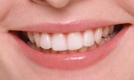 image_dentition3_1.jpg